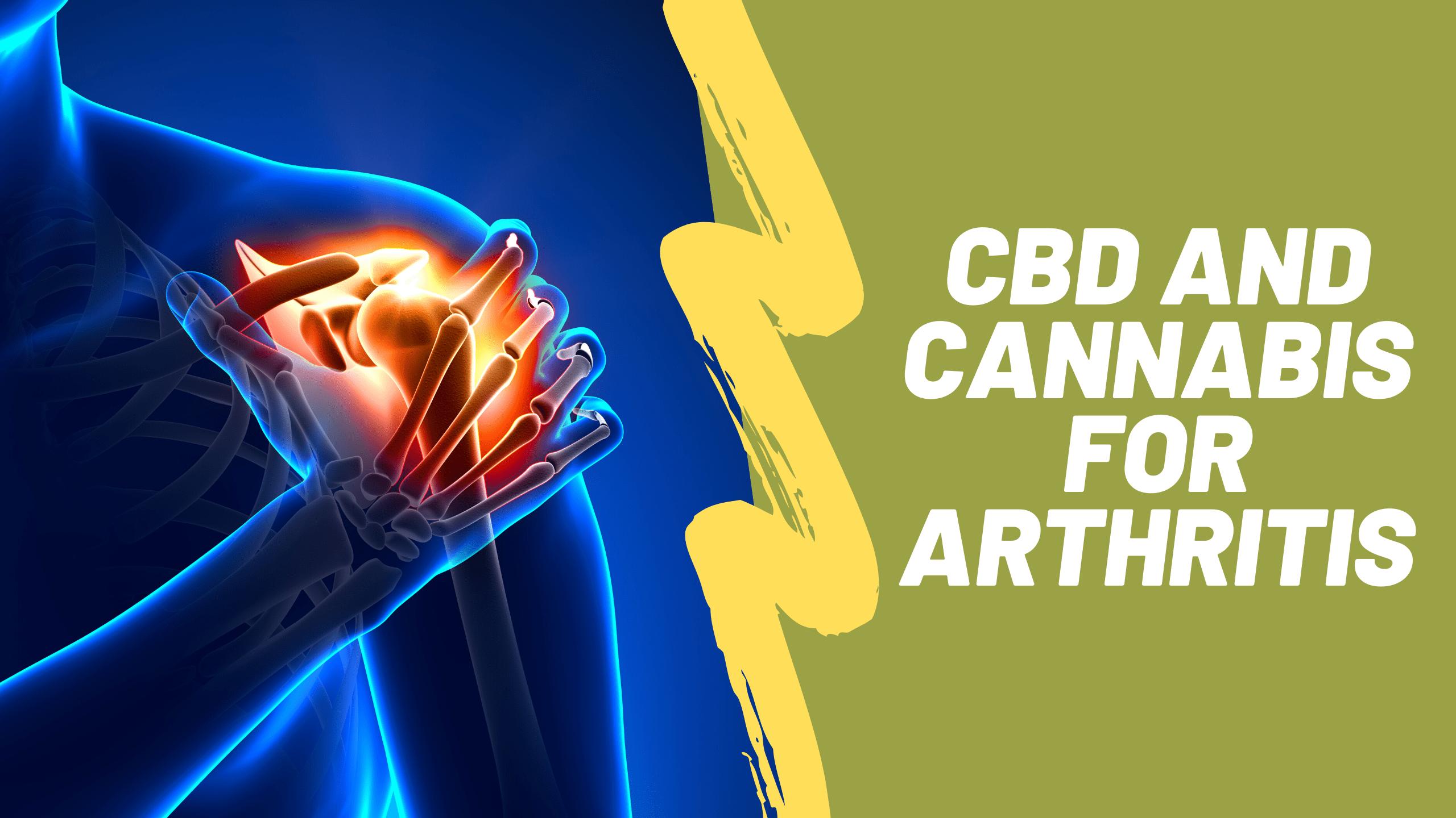 CBD and Cannabis for Arthritis